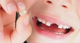 institutobernal-dr-anderson-bernal-tratamentos-odontopediatria