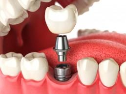 institutobernal-dr-anderson-bernal-tratamentos-implante