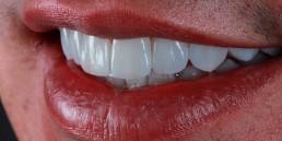 institutobernal-dr-anderson-bernal-tratamentos-lentes-de-contato-dentais-2019
